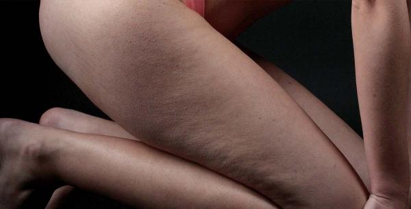 Anticelulit - tretmani tijela do linije koja oduzima dah