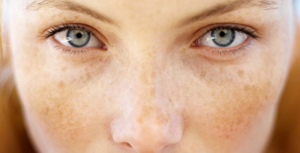 Tretman tamnih fleka i pjega